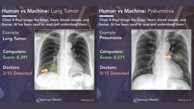 Illustration of What Diseases Can Be Detected By X-rays?