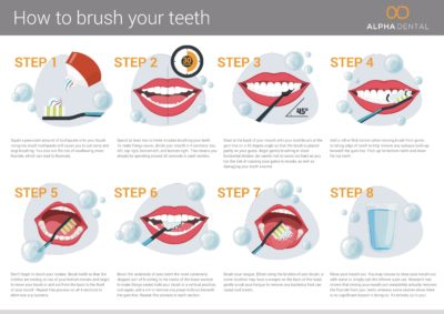 Illustration of How Long Is Allowed To Rinse Your Teeth After The Tooth Dislodged?