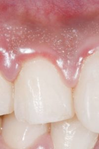 Illustration of The Gums Feel Painful And Swollen?
