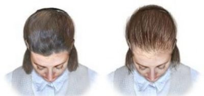 Illustration of Hair Loss After Taking The Lactation Birth Control Pill?