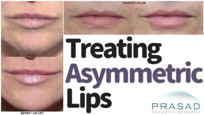 Illustration of How To Deal With Asymmetrical Lips?
