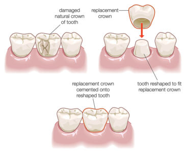 Illustration of Do You Need To Crown The Teeth?