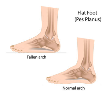 Illustration of Is It Natural For A Foot To Not Be Lowered Because Of A Wound On The Back Of The Foot?