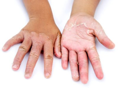 Illustration of Causes Of The Skin On The Palms Peeling And Itching?