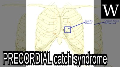 Illustration of Appropriate Treatment For Precordial Catch Syndrome?