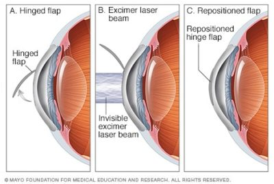 Illustration of Side Effects Of Lasik Surgery?