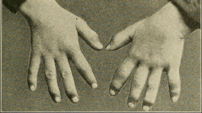 Illustration of The Cause Of A Finger Is Often Sick?