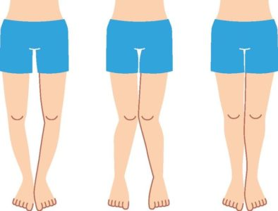 Illustration of Can X-shaped Legs Be Cured By Exercise?