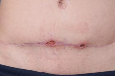 Illustration of Round Bumps On The Caesarean Section Stitches?