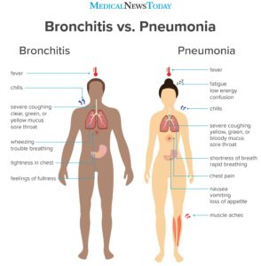 Illustration of Coughing Has Been A Week Of Possible Recurrence Of Bronchopneumonia?