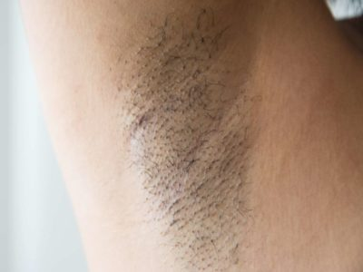 Illustration of Small Bumps Appear In The Armpits?