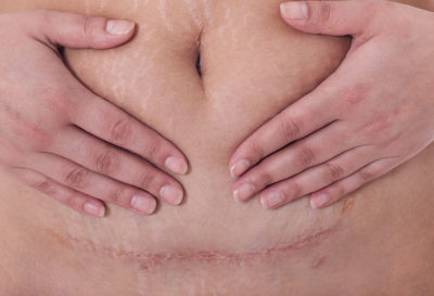 Illustration of The Suture Scar Feels Sore?