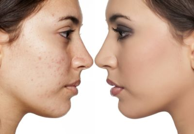Illustration of How To Deal With Acne That Is Difficult To Disappear And Scars?