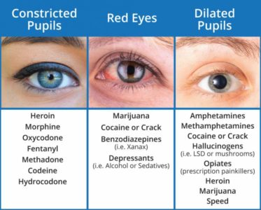 Illustration of Medication To Deal With Red Eyes?