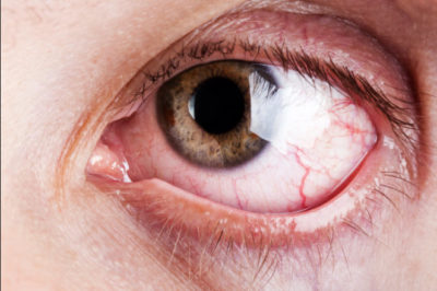 Illustration of Red-eye Complaints In Patients With Nearsightedness?