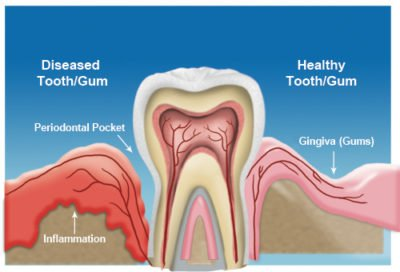 Illustration of Treatment For Inflammation Of The Teeth?