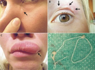 Illustration of Lump On The Left Face Next To The Eye?