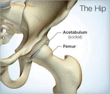 Illustration of The Cause Of Moving Hip Pain?