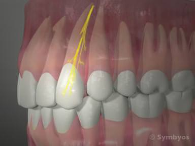 Illustration of Front Upper Toothache?