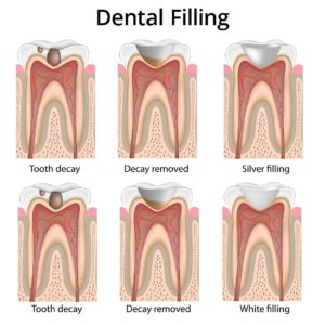 Illustration of Handling Of Decayed Cavities?