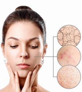 Illustration of Causes And Overcome The Face That Is Prone To Breakouts?