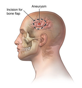 Illustration of Procedure In The Operation Of The Head Bone?