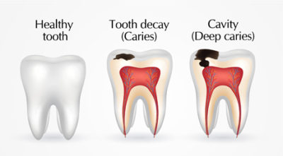 Illustration of Why Do Dental Caries And Decay?