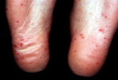 Illustration of Red Spots On The Sole Of The Toe And Feel Pain?