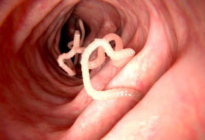 Illustration of Is It Always Itchy Because Of Intestinal Worms?