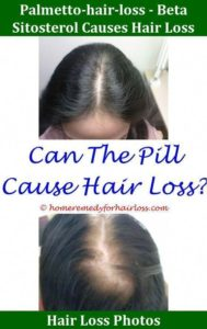 Illustration of Causes Of Hair Loss And Dizziness?