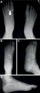 Illustration of X-ray Examination Results On A Sprained Foot?