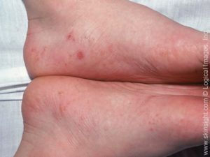 Illustration of Itchy Bumps On The Feet And Hands?