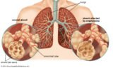 Transmission Of Lung Disease?
