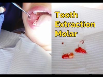 Illustration of Procedure For Tooth Extraction?