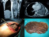 Surgery For Patients With Lung Infections?