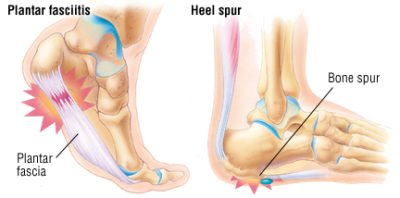 Illustration of The Cause Of Pain In The Right Heel To The Calf?