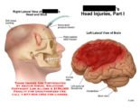 What Is Meant By Intracranial Fracture?