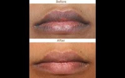 Illustration of Causes And Ways To Deal With Blackened Lips?