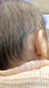 Illustration of Lump Behind The Ears Of A 10-month-old Baby?