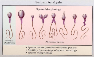 Illustration of Are Sperm Colored Clear Or Infertile?