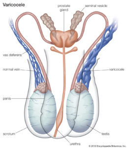 Illustration of Diseases Of The Reproductive System?