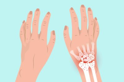 Illustration of Pain And Stiffness In The Wrists And Fingers And Toes?