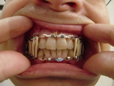 Illustration of Gums Hurt After The Use Of Arch Bars?