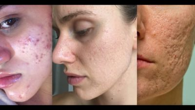 Illustration of Overcoming Acne And Scars?