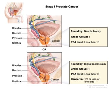 Illustration of Treatment For Prostate Disorders?