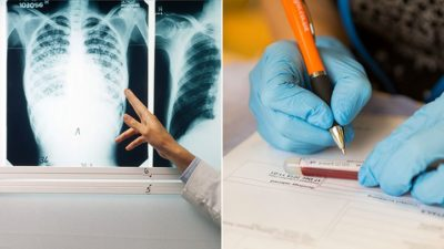 Illustration of Explanation Of X-ray Examination Results To Detect Tuberculosis?
