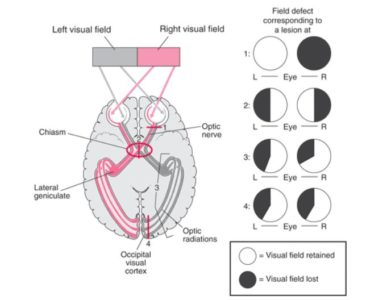 Illustration of Vision Loss After A Stroke?