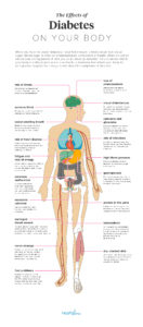 Illustration of Complications That Can Be Caused By Diabetes?
