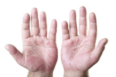 Illustration of Cracked Fingers And Palms?
