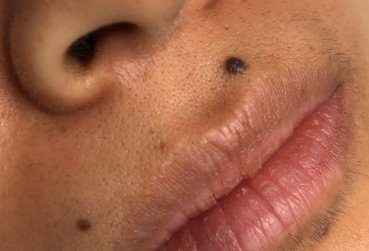 Illustration of Overcoming Scars When Removing Moles?